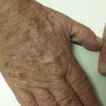 Cura delle alterazioni della pelle causate dal sole