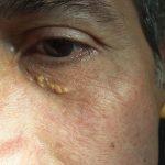 Xantelasma palpebra inferiore